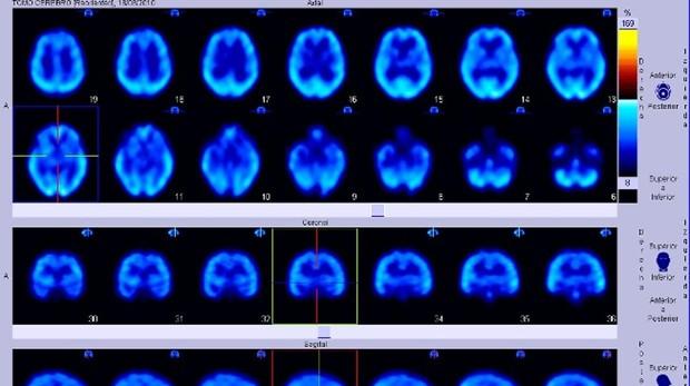 Cerebro con párkinson