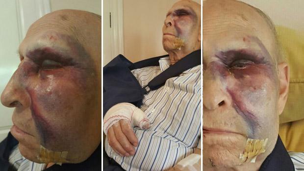 Las lesiones sufridas por Feliciano, un vecino de Sevilla que fue atropellado en ramón y Cajal